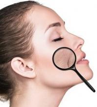 botox en huidveroudering