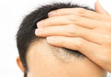prp en dr cyj hair filler behandeling haarverlies